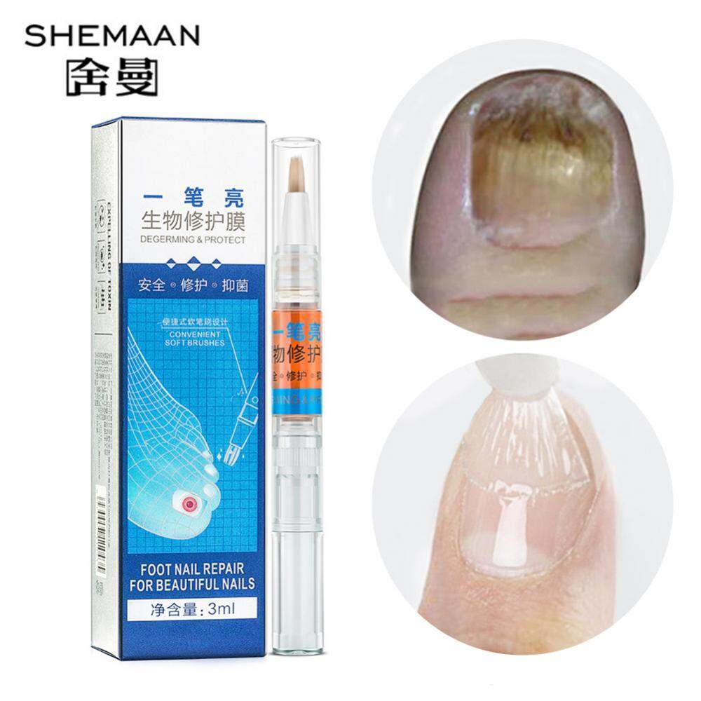 Shemaan Anti Fungus Nail Treatment Onychomycosis Liquid Hand Foot Care Nail Regeneration Serum - intl