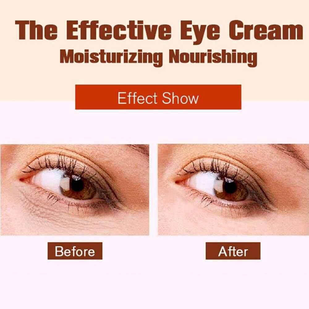 ... Chux 3pcs Anti Wrinkle Anti Aging Eye Cream Ageless Effectively Remove Dark Circles Puffiness Repair Eye