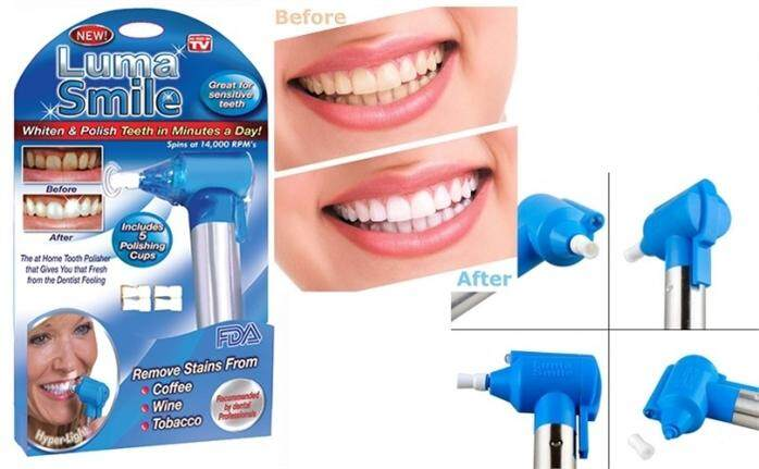 Luma Smile -  Teeth Polish Whitening System (Great For Sensitive Teeth)