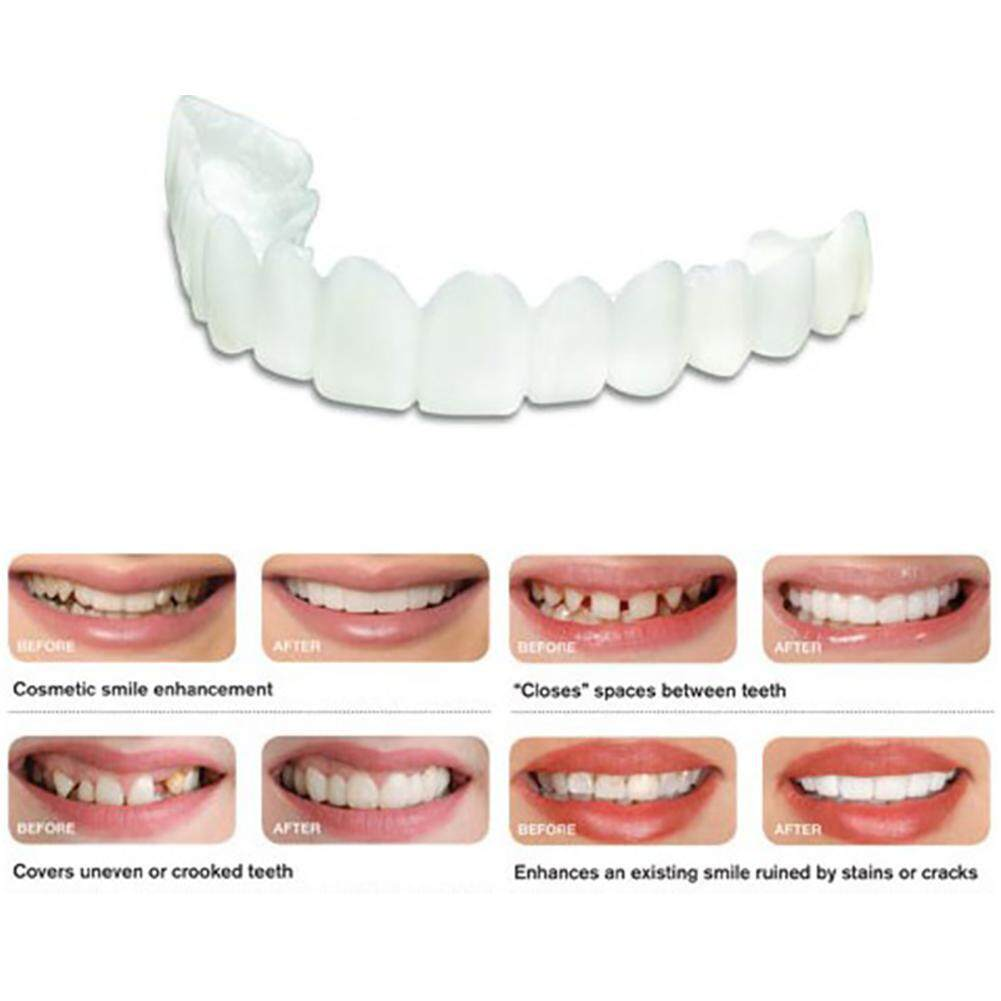 Review 8 Packages Of Instant Smile Billy Bob Replacement