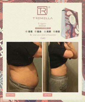 (2Box) Tremella Dx Premium Enzyme 40 in 1 日本蔬果植物綜合酵素 ★ 高級版 ★