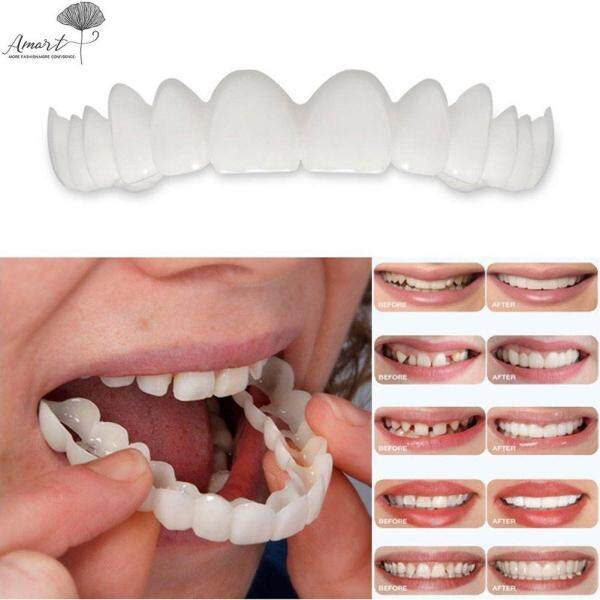 Amart Fashion Snap on Smile  Denture Fit Flex Cosmetic Teeth Comfortable Veneer Cover