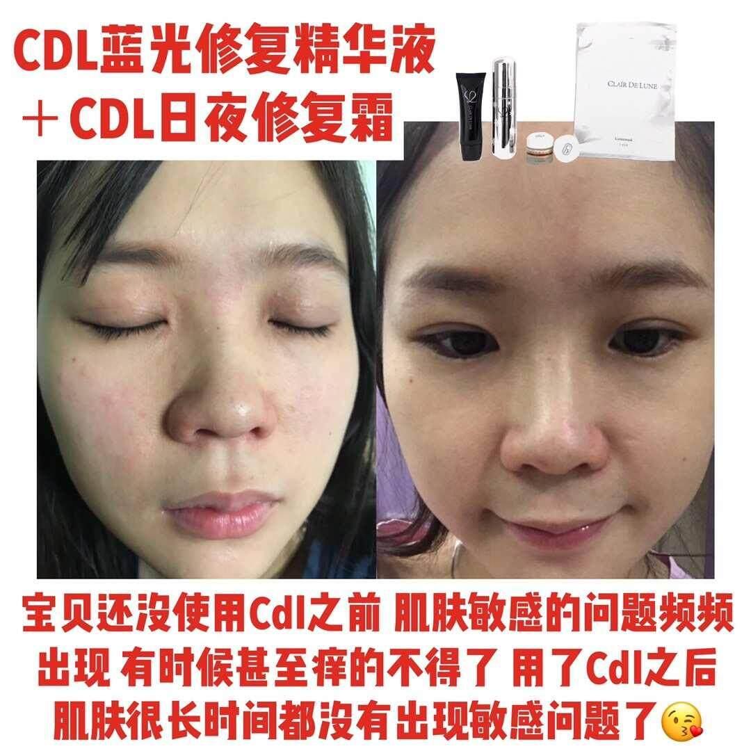 CDL  CDL LuminEssence Serum 30ML (FOC 5 LuminMasks)