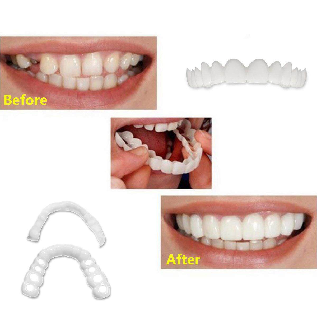 Congratulate, dentures liner plastic strip agree with