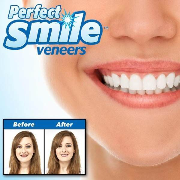 PERFECT SMILE VENEERS DUB - FIT TO YOUR EXISTING TEETH