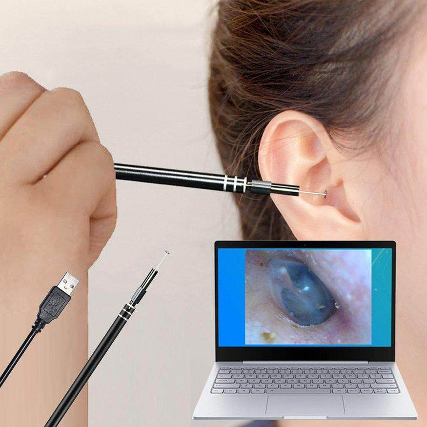 Uinn Usb Ear Cleaning Endoscope Hd Visual Ear Spoon Earpick With Mini Camera By Warmness Inn.