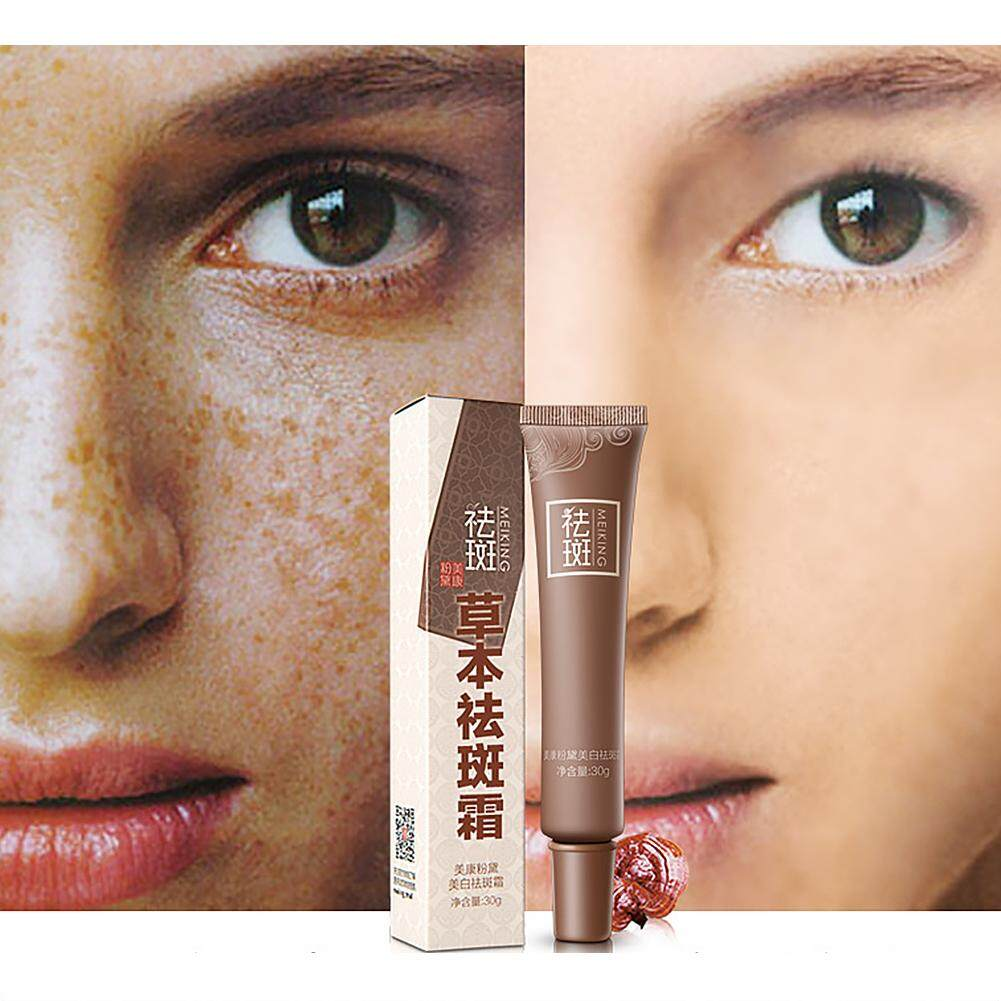 Dark Spot Corrector Skin Whitening Fade Cream Lightening Blemish Removal Serum Reduces Age Spots Freckles Melasma Face Cream Philippines