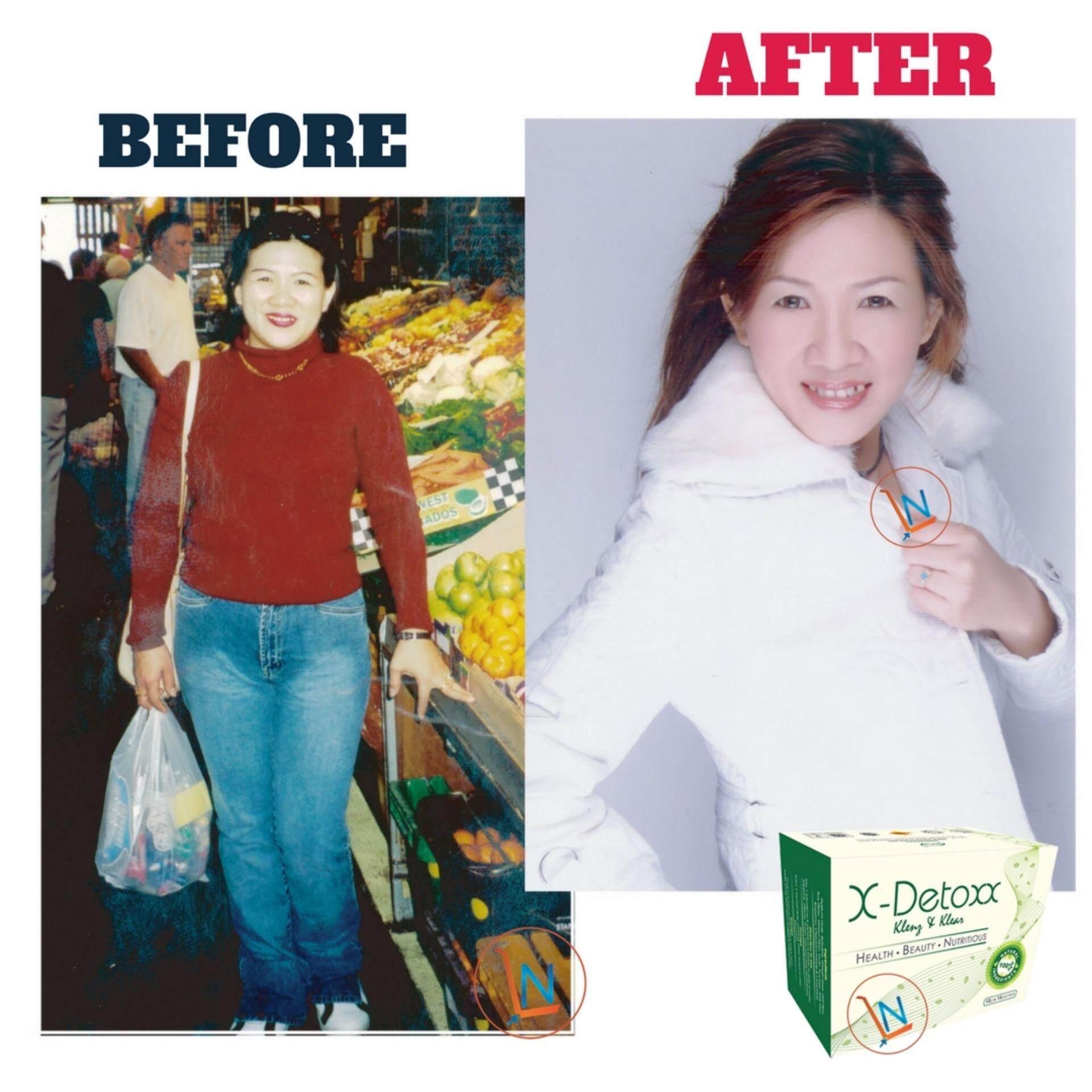 X-DETOXX Natural Fiber Detox & Lose Weight Drink (15 Sachets Per Box)