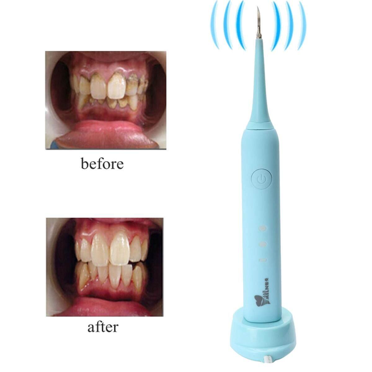 แปรงสีฟันไฟฟ้า ทำความสะอาดทุกซี่ฟันอย่างหมดจด สมุทรสงคราม 【การจัดส่ง   Super DEAL   จำกัด Offer】Meiman M3 ฟันแคลคูลัส removal อุปกรณ์ฟันฟันเครื่องมือสำหรับคราบสกปรกครัวเรือน EU สีฟ้า สีชมพู