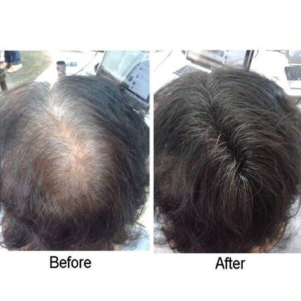 Caboki Hair Building Fibers 9G(Black) + 9G (Dark Brown)